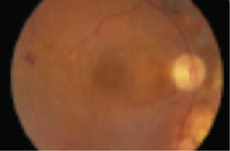 Funduscopic appearance of anti-VEGF- treatment naïve patient with 20/32 baseline vision and Diabetic Macular Edema
