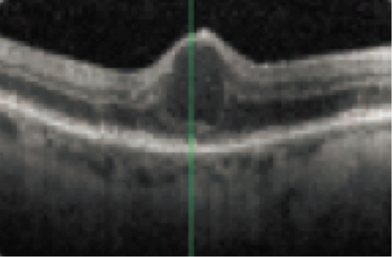 Funduscopic appearance of anti-VEGF- treatment naïve patient with 20/100 baseline vision and Diabetic Macular Edema with prior laser treatment